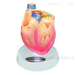心脏传导系统解剖模型