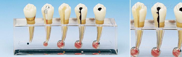 牙髓病临床模型B 牙医教学