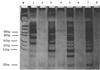 端粒酶活性檢測