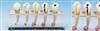 KAH/B10015/2牙髓病临床模型B 牙科模型